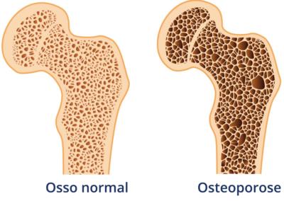 Por que ultimamente temos ouvido falar mais da osteoporose? Ela está aumentando em frequência?